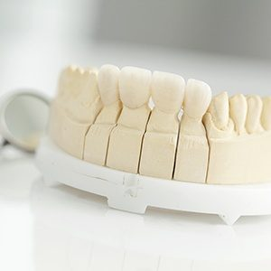 Model tooth with fixed bridge