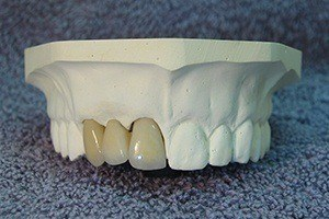 Model of smile with fixed bridge