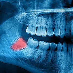 X-ray of wisdom teeth prior to extraction