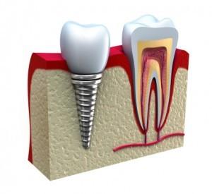 17-implants011515