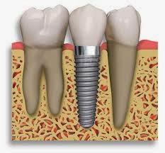 7-implant072715