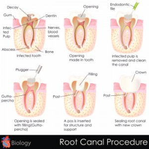 9-rootcanal062515