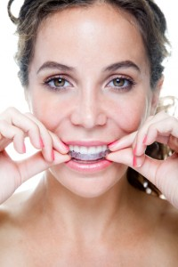 Your Invisalign provider in Lincoln helps you improve your smile.