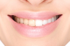 teeth whitening in Lincoln