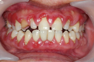 Do you need gum disease treatment from your dentist in Lincoln?