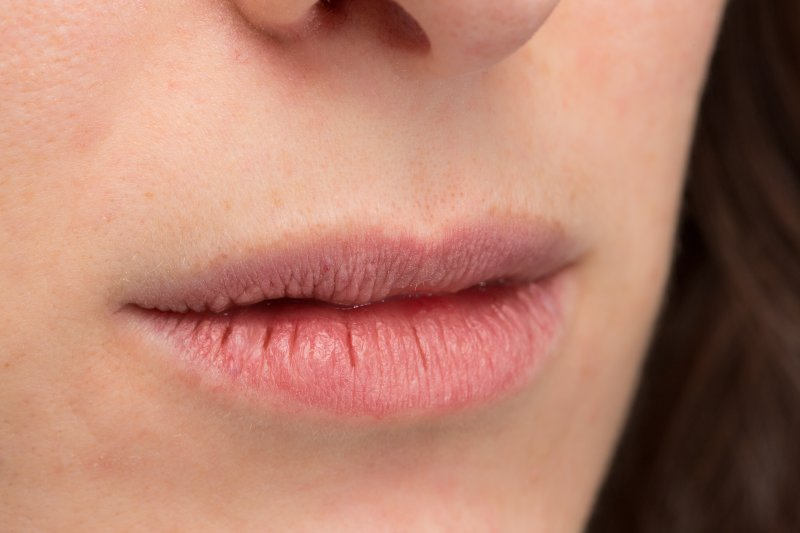 an up-close look at a person's chapped lips